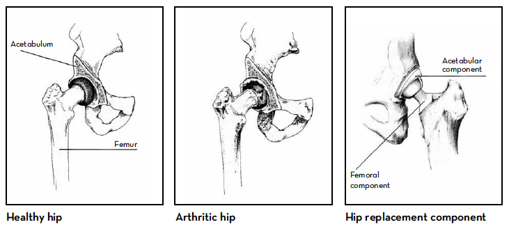 Illustration of healthy hip, arthritic hip and hip replacement component