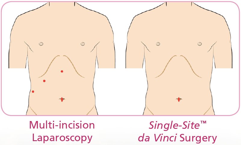 Laparoscopy vs Single Site Da Vinci