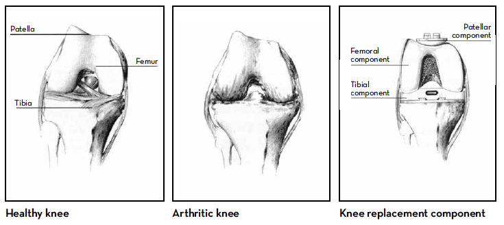 Illustration of healthy knee, arthritic knee, and knee replacement component